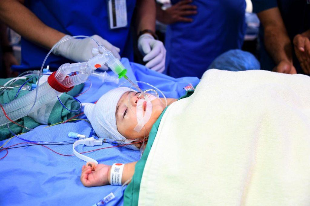 الربيعة يعلن نجاح عملية فصل التوأم السيامي الليبي